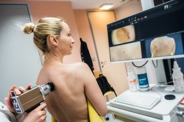 Diagnosis of melanoma in Israel