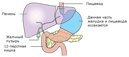removal of stomach surgery