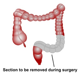 Treatment of cancer of the sigmoid colon in Israel
